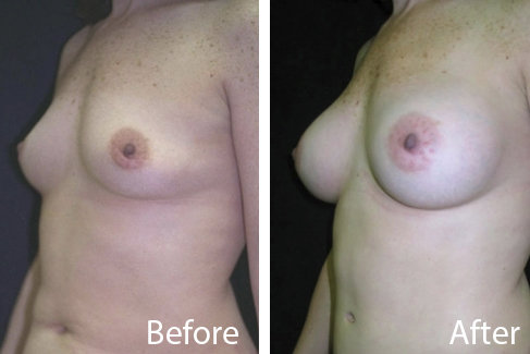 North Andover Breast Augmentation Patient Before and After