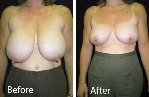 Breast Reduction Patient Nashua Before and After Image