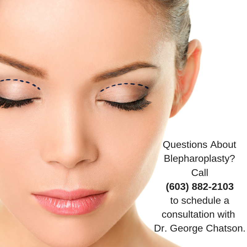 Nashua Eyelid Lift | Blepharoplasty New Hampshire