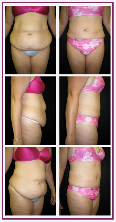 Boston area abdominoplasty with Dr Chatson