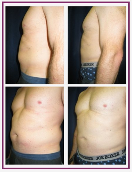 Body Contouring for Men in the Boston Area | Dr Chatson